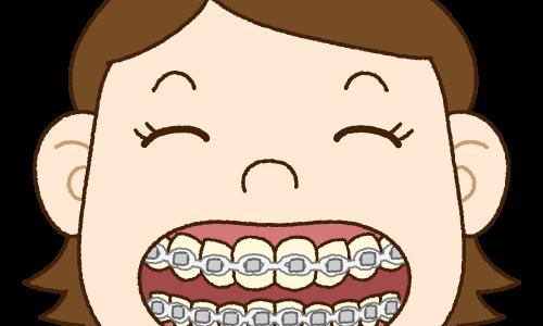 指原莉乃(AKB48)もマツコ・デラックスもやっている。歯の「裏側矯正」についてくわしく説明します