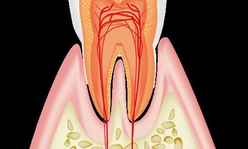 昨日痛かった歯が今日は痛くない…虫歯は治る??【歯科衛生士の回答】