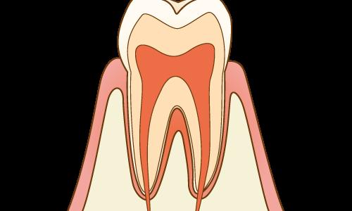 生えたときから歯が茶色い? エナメル質形成不全について説明します