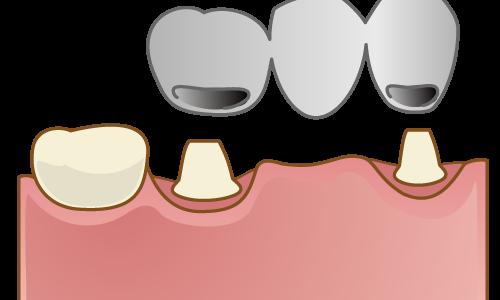 「歯を抜いた後の治療法」3つ! 【ブリッジ・入れ歯・インプラント】についてくわしく説明します