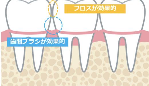 【磨いてるつもり?】歯みがきで磨き残しの多い場所とその磨き方をくわしく説明します