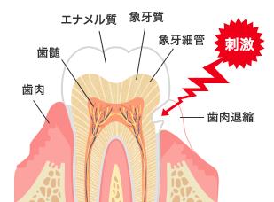 【歯がしみるのは君だけじゃない】知覚過敏の原因と対処法について説明します