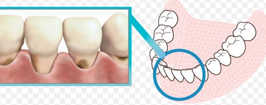 30歳を過ぎたら|おとな虫歯「根面う蝕」に気をつけて!