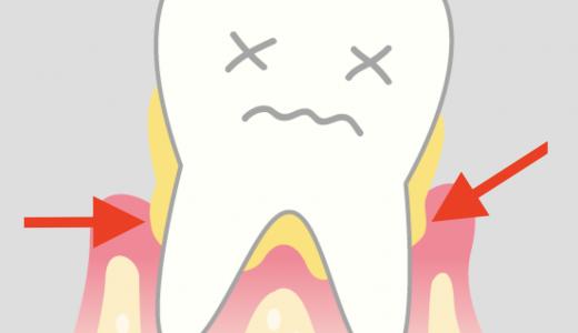 【口臭対策にも】歯周病を改善する方法、こちらです。