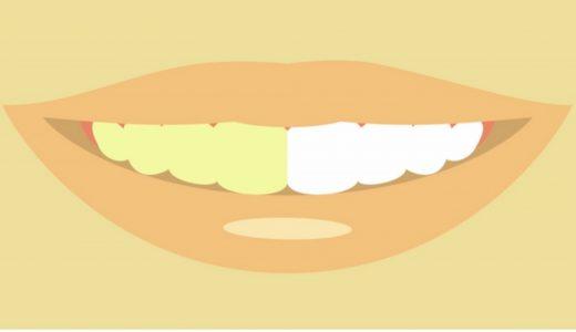 第一印象を上げる簡単な方法|プレミアムブラントゥースで歯のホワイトニング