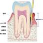 歯周病の検査で出血する?痛みは?検査方法や費用について説明します